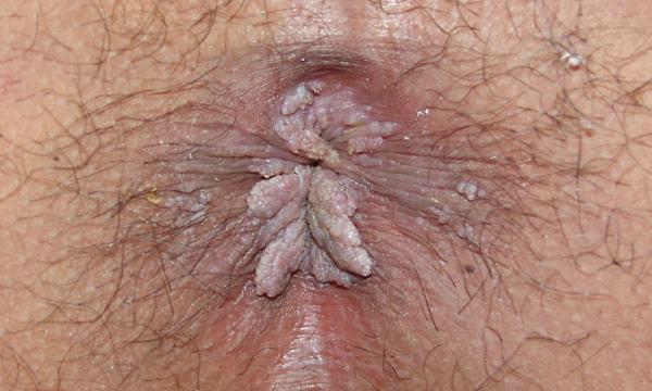 kondilomi na anusu