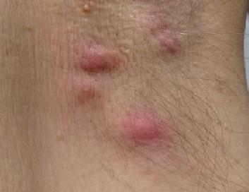 kvrzica ispod pazuha bolna na dodir
