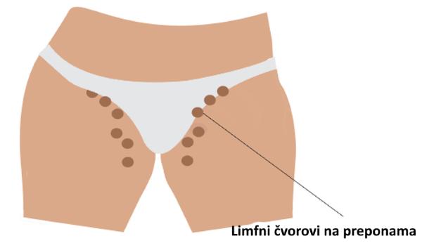 limfni cvorovi na preponama