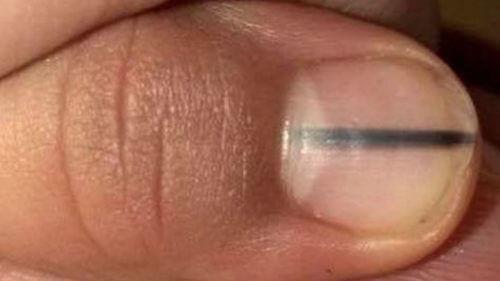 melanom nokta kako izgleda
