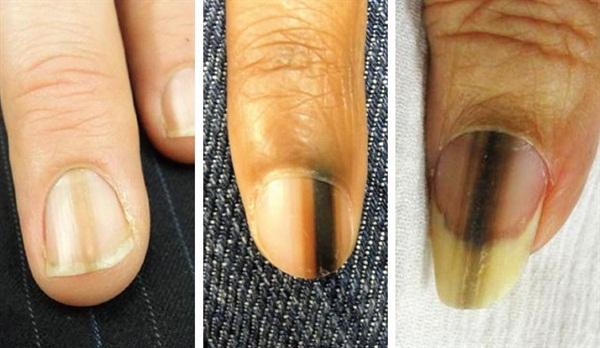 melanom nokta