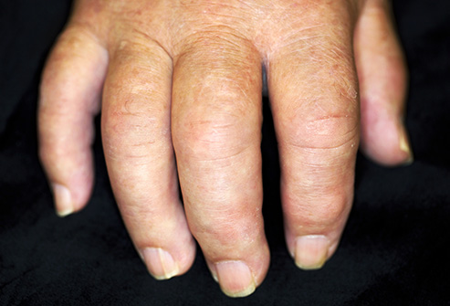 oteceni prsti