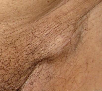 oticanje limfnih zlezda na preponama