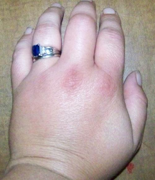 oticanje ruku i prstiju na rukama