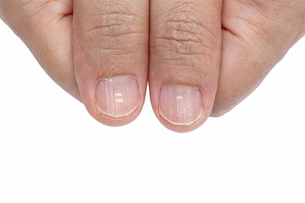 pruge na noktima