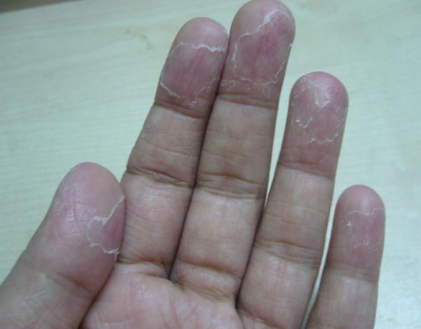 pucanje kože na jagodicama prstiju