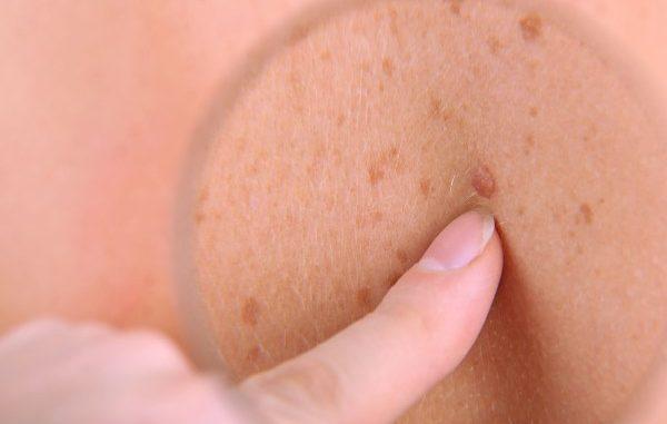 rak kože
