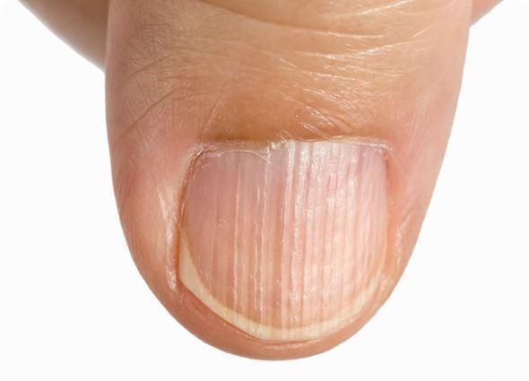 rebrasti nokti uzrok