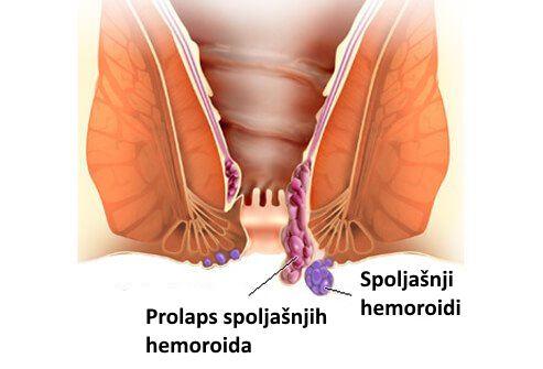 spoljasnji hemoroidi