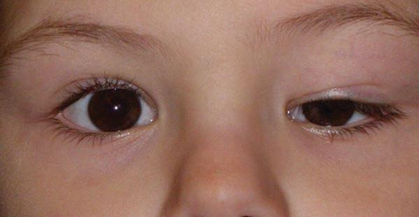 spusten ocni kapak kod dece