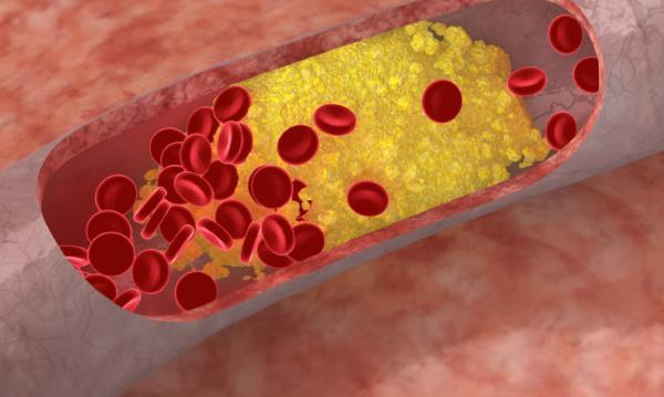 trigliceridi u krvi