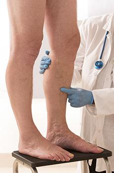 tromboza noge dijagnoza