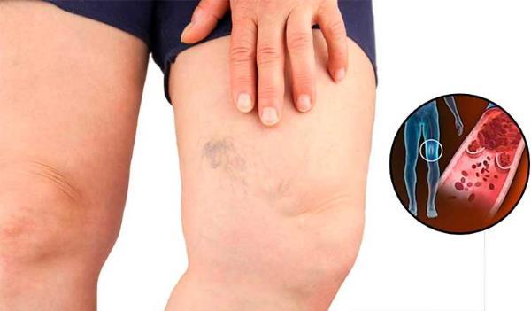 tromboza noge