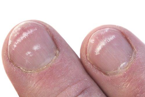 uzduzne bele mrlje na noktima