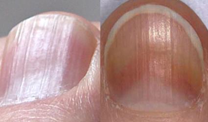 uzduzne brazde na noktima uzrok