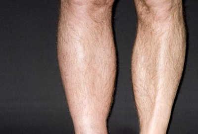 venska tromboza noge