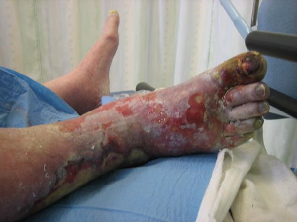 vlazna gangrena