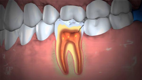 zubna gangrena