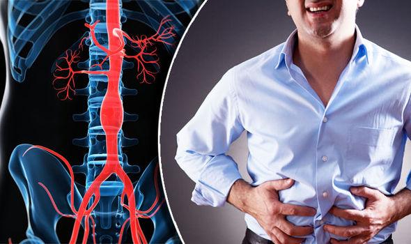 aneurizma trbusne aorte