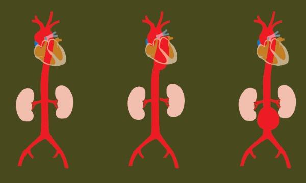 aorta u stomaku