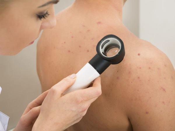 bubuljice po leđima prevencija