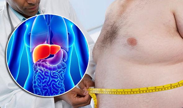 ciroza jetre simptomi