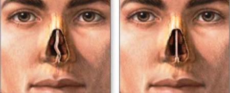 devijacija septuma nosa
