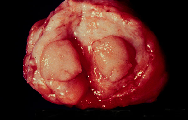 fibroadenom dijke