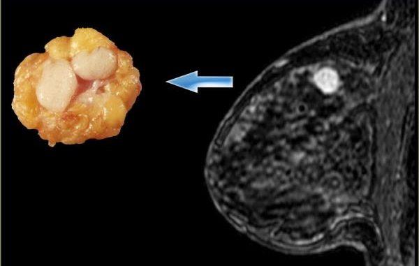 fibroadenom u dojci