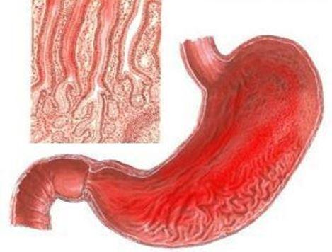 gastritis simptomi