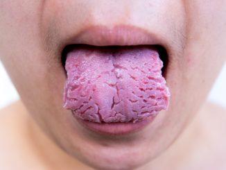 ispucani jezik