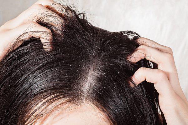 kako ukloniti perut