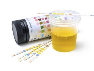 ketoni u urinu