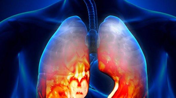 pneumonija
