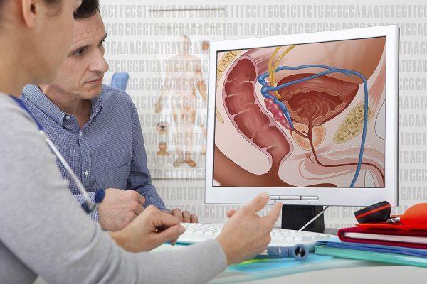 rak prostate lecenje