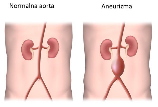 stomacna aorta