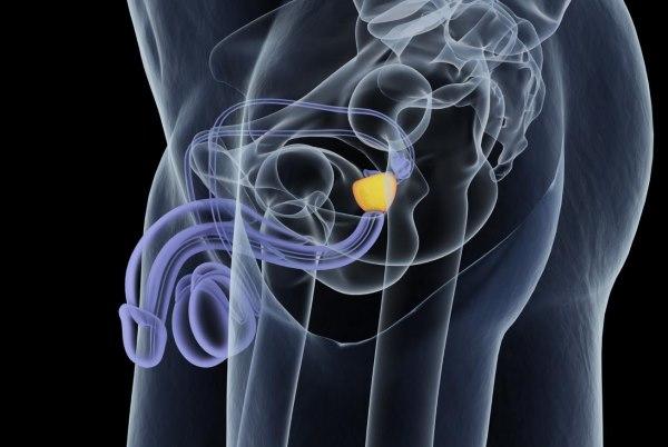 upala prostate kod mladih muskaraca