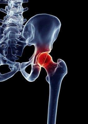 bolovi u kuku prirodno liječenje