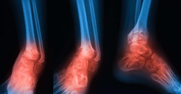 osteomijelitis infekcija kosti