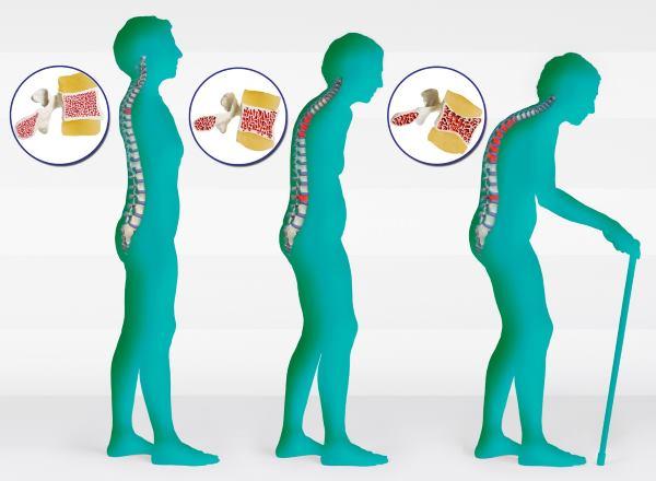 osteopenija simptomi