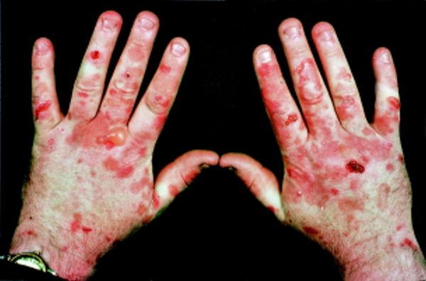 porfirija bolest simptomi
