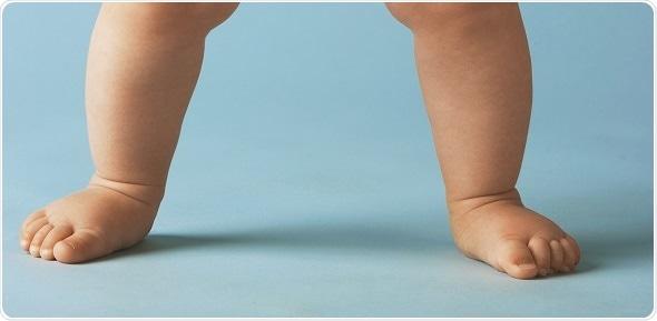 spusteni svodovi stopala
