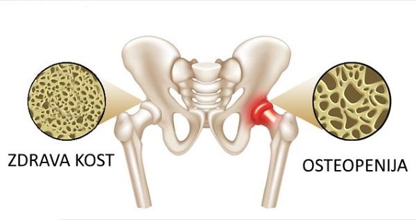 sta je osteopenija