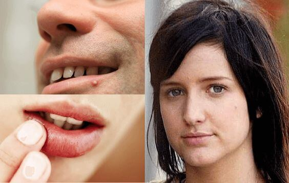 bubuljice na usnama