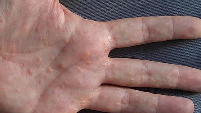 dishidroza na dlanovima