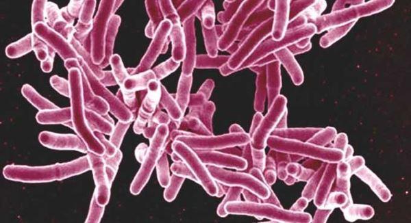 Mycobacterium tuberculosis.
