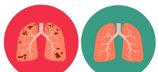 kako se prenosi tuberkuloza