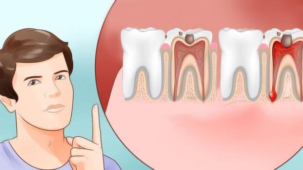 kako ublaziti jaku zubobolju