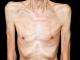 https://simptomibolesti.com/tuberkuloza-simptomi-prenosenje-test-lecenje/