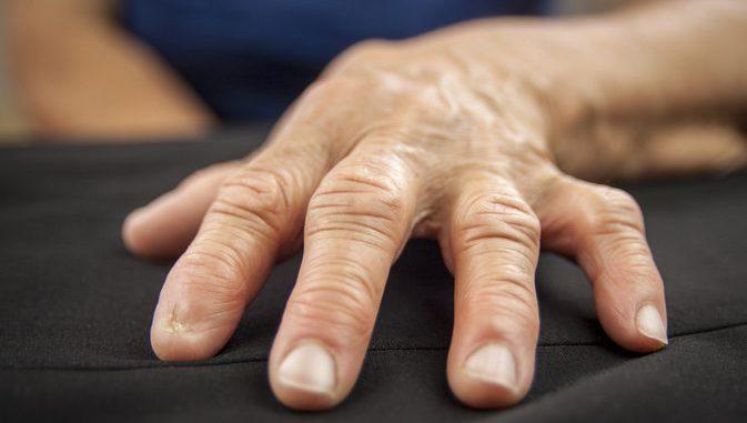 artritis sake